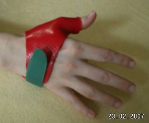 schwerpunkte_handchirurgie_clip_image004_0000